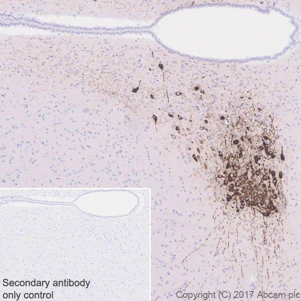 Immunohistochemistry (Formalin/PFA-fixed paraffin-embedded sections) - Anti-Vasopressin antibody [EPR20602] (ab213708)