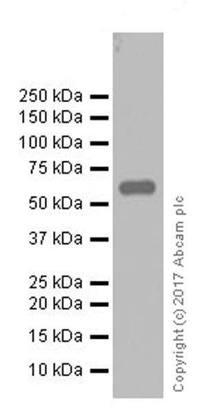 Western blot - Anti-Elastin antibody [EPR20603] (ab213720)