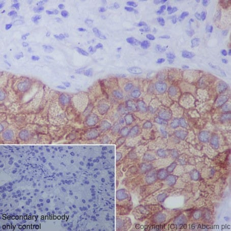 Immunohistochemistry (Formalin/PFA-fixed paraffin-embedded sections) - Anti-LPCAT1 antibody [EPR19882] (ab214034)