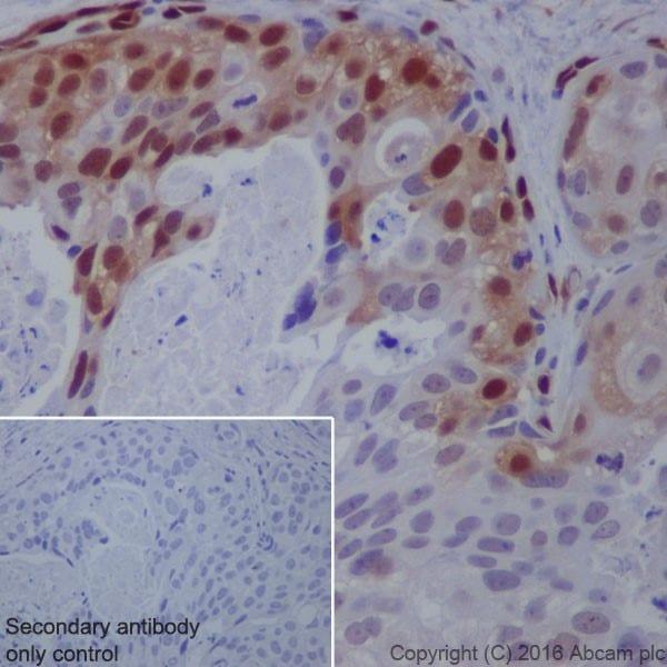 Immunohistochemistry (Formalin/PFA-fixed paraffin-embedded sections) - Anti-ERK1 (phospho T202) + ERK2 (phospho T185) antibody [EPR18444] (ab214036)