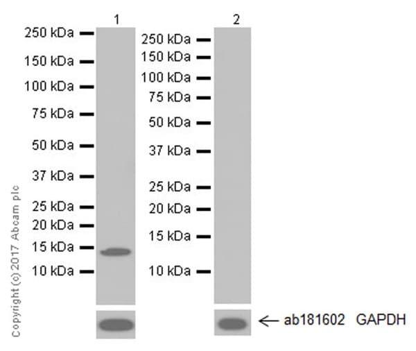 Western blot - Anti-Hemoglobin subunit beta/ba1 antibody [EPR20614] (ab214049)