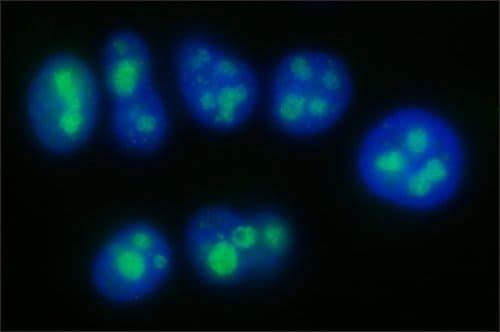 Immunocytochemistry/ Immunofluorescence - Anti-EXOSC5/CML28 antibody [EXOSC5(A)-2] - N-terminal (ab214081)