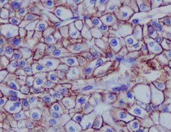 Immunohistochemistry (Formalin/PFA-fixed paraffin-embedded sections) - Anti-Cadherin 16 antibody [EPR13090] - BSA and Azide free (ab214092)