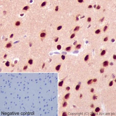 Immunohistochemistry (Formalin/PFA-fixed paraffin-embedded sections) - Anti-AKT1 + AKT2 + AKT3 antibody [EPR17671] - BSA and Azide free (ab214166)