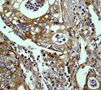 Immunohistochemistry (Formalin/PFA-fixed paraffin-embedded sections) - Anti-ERK1 antibody [Y72] - BSA and Azide free (ab214168)