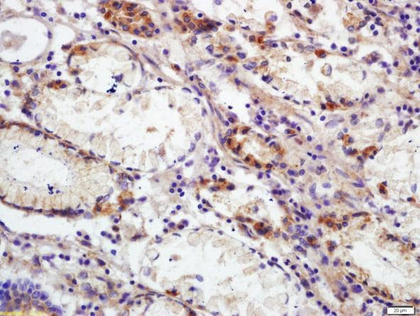 Immunohistochemistry (Formalin/PFA-fixed paraffin-embedded sections) - Anti-CD66b antibody (ab214175)