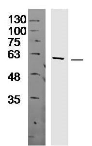 Western blot - Anti-FAM149B1 antibody (ab214177)