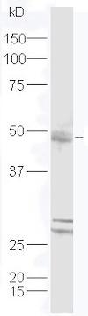Western blot - Anti-DPAGT1/GPT antibody (ab214179)