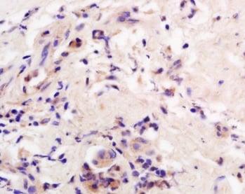 Immunohistochemistry (Formalin/PFA-fixed paraffin-embedded sections) - Anti-AADAC/DAC antibody (ab214184)
