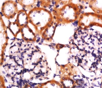 Immunohistochemistry (Formalin/PFA-fixed paraffin-embedded sections) - Anti-NLRP3 antibody (ab214185)