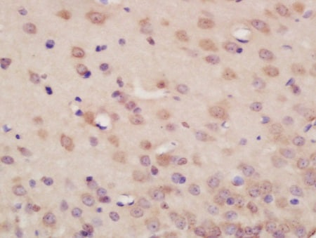 Immunohistochemistry (Formalin/PFA-fixed paraffin-embedded sections) - Anti-Neurexin 1 antibody (ab214191)