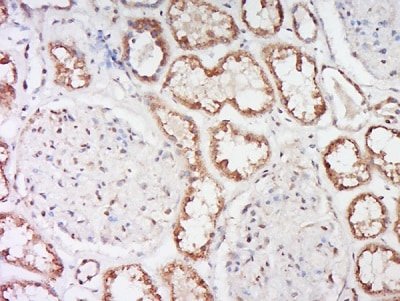 Immunohistochemistry (Formalin/PFA-fixed paraffin-embedded sections) - Anti-epithelial Sodium Channel alpha antibody (ab214192)
