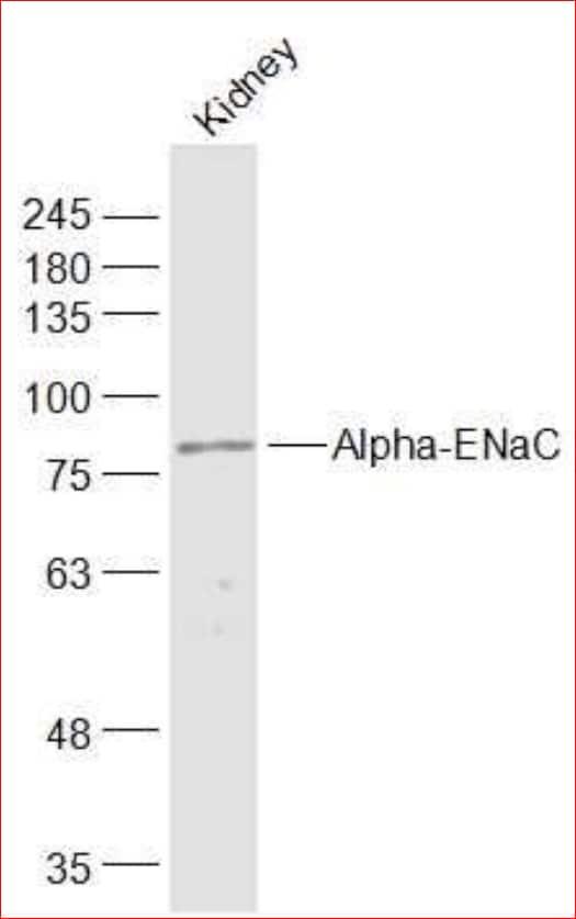 Western blot - Anti-epithelial Sodium Channel alpha antibody (ab214192)