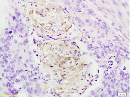 Immunohistochemistry (Formalin/PFA-fixed paraffin-embedded sections) - Anti-Cathepsin B antibody (ab214197)