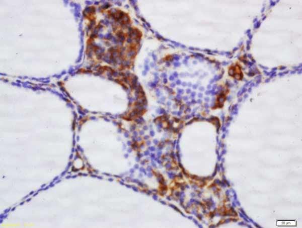 Immunohistochemistry (Formalin/PFA-fixed paraffin-embedded sections) - Anti-NNT antibody - C-terminal (ab214212)