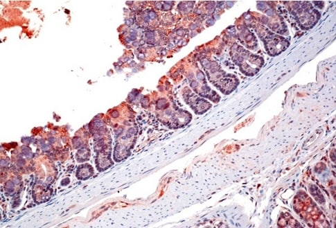 Immunohistochemistry (Formalin/PFA-fixed paraffin-embedded sections) - Anti-ZO1 tight junction protein antibody (ab214228)