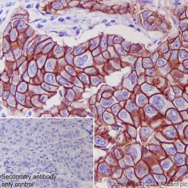 Immunohistochemistry (Formalin/PFA-fixed paraffin-embedded sections) - Anti-ErbB 2 antibody [EPR19547-12] (ab214275)