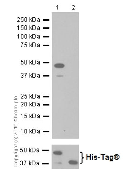 Western blot - Anti-ErbB2 / HER2 antibody [EPR19547-12] (ab214275)