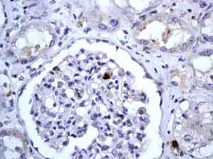 Immunohistochemistry (Formalin/PFA-fixed paraffin-embedded sections) - Anti-CD20 antibody [EP459Y] - BSA and Azide free (ab214282)
