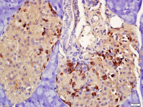 Immunohistochemistry (Formalin/PFA-fixed paraffin-embedded sections) - Anti-Prolactin Receptor/PRL-R antibody (ab214303)