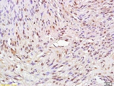 Immunohistochemistry (Formalin/PFA-fixed paraffin-embedded sections) - Anti-ATAD2 antibody (ab214305)