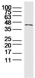 Western blot - Anti-CRTAM antibody (ab214306)