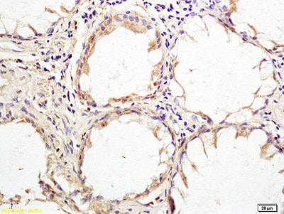 Immunohistochemistry (Formalin/PFA-fixed paraffin-embedded sections) - Anti-HHLA2 antibody (ab214327)