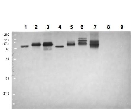 Western blot - Anti-Flavivirus NS1 antibody [D/2/D6/B7] (ab214337)