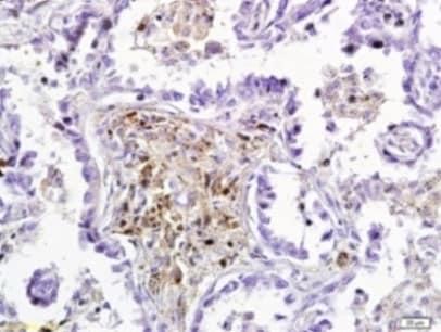 Immunohistochemistry (Formalin/PFA-fixed paraffin-embedded sections) - Anti-Dkk3 antibody (ab214360)