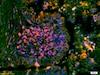 Immunohistochemistry (Formalin/PFA-fixed paraffin-embedded sections) - Anti-ERK1 + ERK2 (phospho T202 + Y204) antibody (ab214362)
