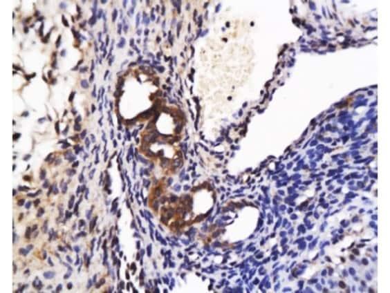 Immunohistochemistry (Formalin/PFA-fixed paraffin-embedded sections) - Anti-APJ Receptor antibody (ab214369)