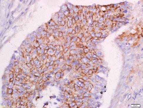 Immunohistochemistry (Formalin/PFA-fixed paraffin-embedded sections) - Anti-CLEC16A antibody (ab214374)