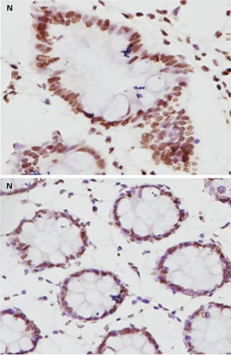 Immunohistochemistry (Formalin/PFA-fixed paraffin-embedded sections) - Anti-MLH1 antibody [EPR3894] - BSA and Azide free (ab214441)
