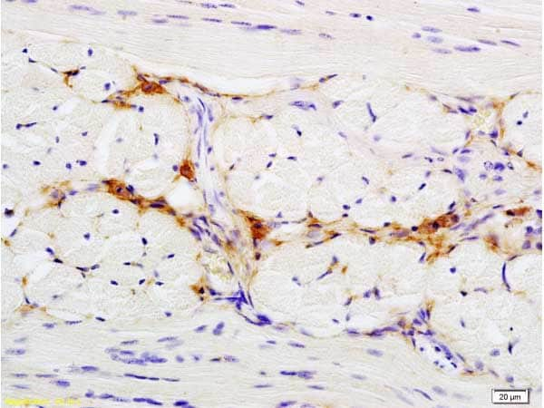 Immunohistochemistry (Formalin/PFA-fixed paraffin-embedded sections) - Anti-CD47 antibody (ab214453)