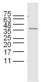 Western blot - Anti-GPM6B antibody (ab214459)