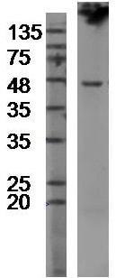 Western blot - Anti-TMPRSS2 antibody (ab214462)