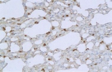 Immunohistochemistry (Formalin/PFA-fixed paraffin-embedded sections) - Anti-TMPRSS2 antibody (ab214462)
