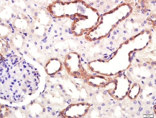 Immunohistochemistry (Formalin/PFA-fixed paraffin-embedded sections) - Anti-Dopamine Transporter antibody (ab214470)
