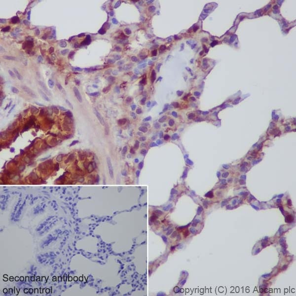 Immunohistochemistry (Formalin/PFA-fixed paraffin-embedded sections) - Anti-Annexin A1/ANXA1 antibody [EPR19342] (ab214486)