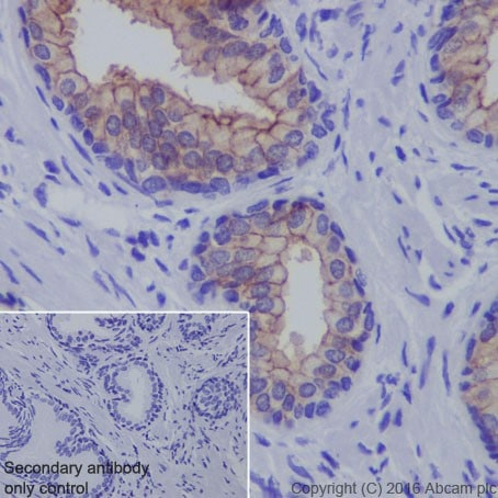Immunohistochemistry (Formalin/PFA-fixed paraffin-embedded sections) - Anti-Claudin 3 antibody [EPR19971] (ab214487)