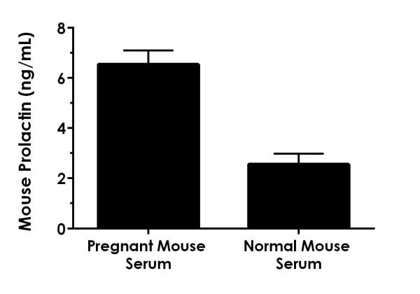Comparison of native Prolactin concentrations in pregnant and normal mouse serum.