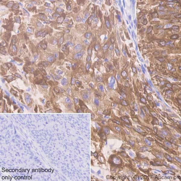Immunohistochemistry (Formalin/PFA-fixed paraffin-embedded sections) - Anti-Cytokeratin 5 antibody [EP1601Y] - BSA and Azide free (ab214586)