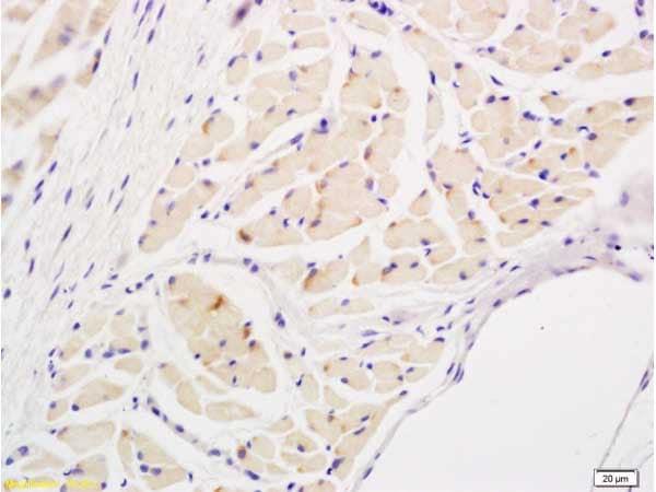 Immunohistochemistry (Formalin/PFA-fixed paraffin-embedded sections) - Anti-IL-17A antibody (ab214588)