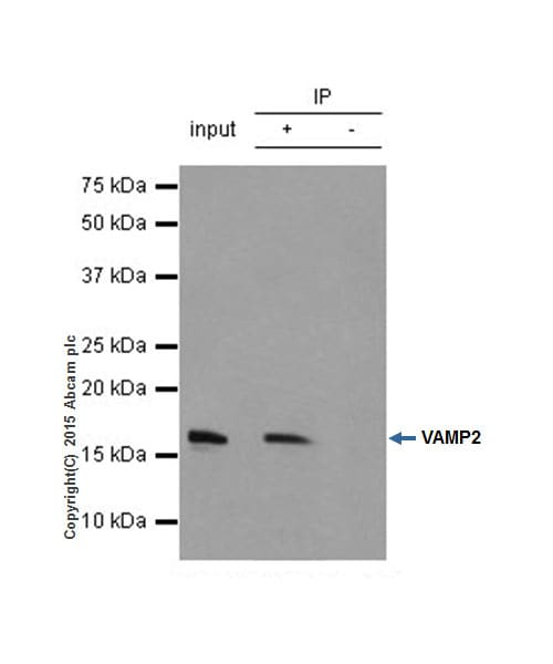 Immunoprecipitation - Anti-VAMP2 antibody [EPR12790] - BSA and Azide free (ab214590)