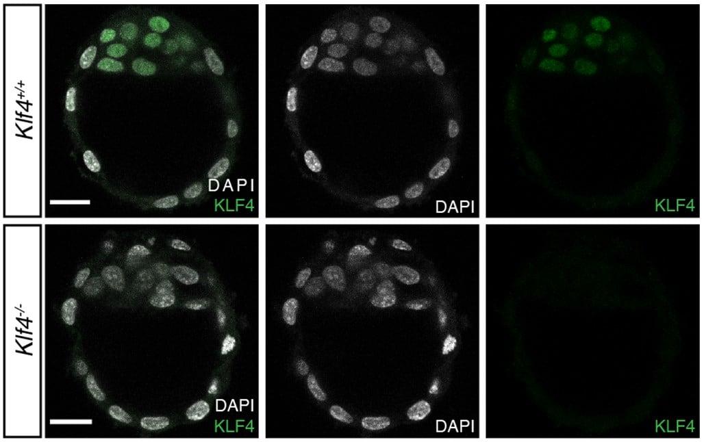 IHC - Wholemount - Anti-KLF4 antibody [EPR20753-25] (ab214666)