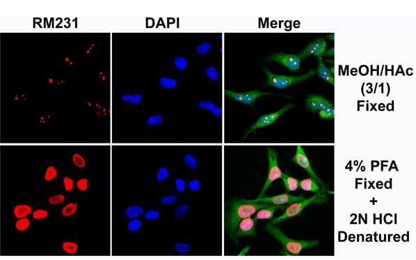 Immunocytochemistry - Anti-5-methylcytosine (5-mC) antibody [RM231] (ab214727)