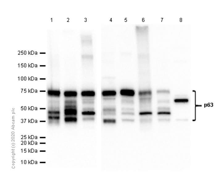 Western blot - Anti-p63 antibody [EPR5701] - BSA and Azide free (ab214790)