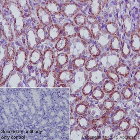 Immunohistochemistry (Formalin/PFA-fixed paraffin-embedded sections) - Anti-MMP3 antibody [EP1186Y] - BSA and Azide free (ab214794)