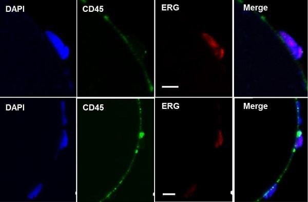 Immunocytochemistry/ Immunofluorescence - Anti-ERG antibody [EPR3864] - BSA and Azide free (ab214796)