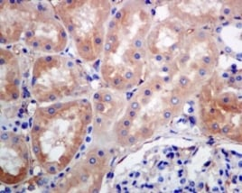 Immunohistochemistry (Formalin/PFA-fixed paraffin-embedded sections) - Anti-RAB7 antibody [EPR7589] - BSA and Azide free (ab214806)